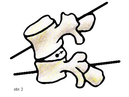 Schéma pohybu meziobratlové ploténky při předklonu