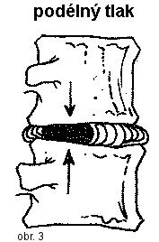 Schéma meziobratlové ploténky při působení tlaku v ose těla